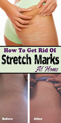 How To Get Rid Of Stretch Marks At Home