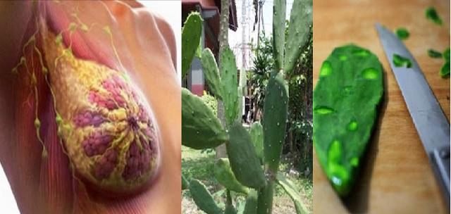 TOLONG di SHARE !! Berkat Daun kaktus Lidah Badak, Kanker Payudara Yang Anda Tengah Alami Bisa Sembuh Total. Berikut Cara Pengolahannya !