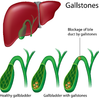 gallstone treatment chennai