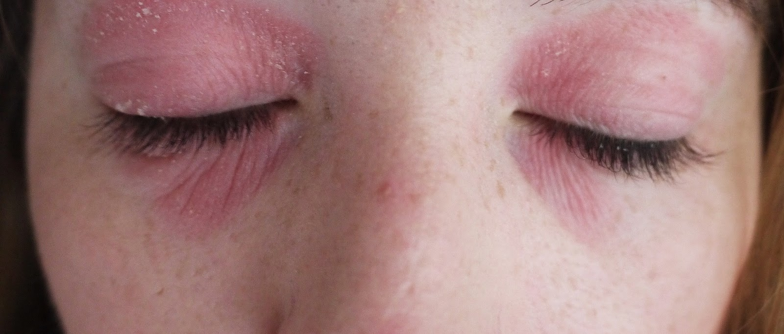 Swollen and red dry eyes caused by eye eczema and eczema around the eyes and face