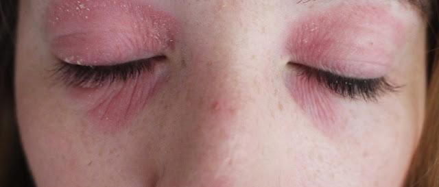 My Struggle With Eye Eczema Lux Life Uk Luxury