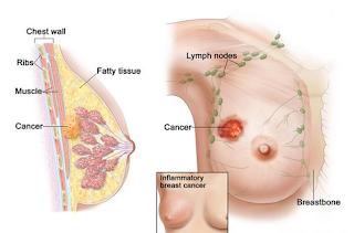 Nama Obat Kanker Payudara Stadium 2, pengobatan kanker payudara, Penyebab Terkena Kanker Payudara Stadium 3
