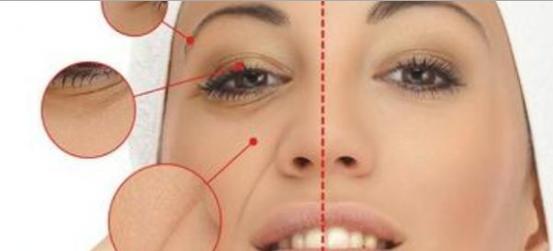 Cara mengatasi garis-garis halus dan kantung mata