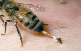 lo que hace que la picadura de una abeja se hinche