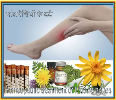 Homeopathic treatment for muscle aches