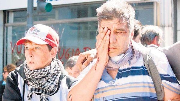 Las heridas de la represión policial en Argentina