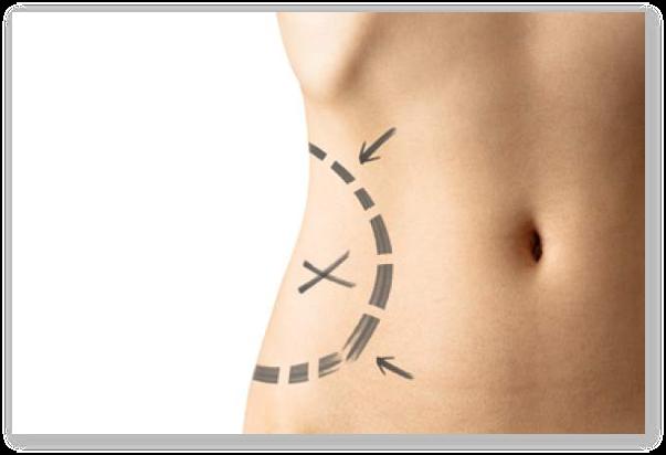 Ce este liposuctia? In ce consta liposuctia?