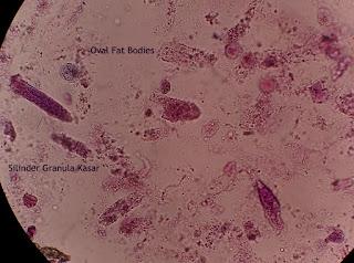 Oval Fat Bodies dan Silinder Granula Kasar.