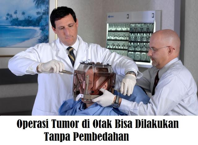 Operasi Tumor di Otak Bisa Dilakukan Tanpa Pembedahan