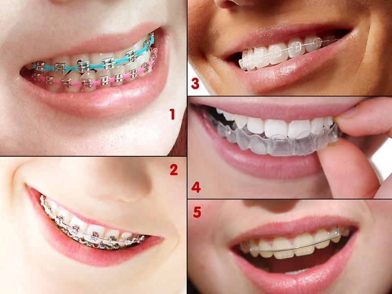 Pilih Warna dan Jenis Kawat Gigi Orange Dental