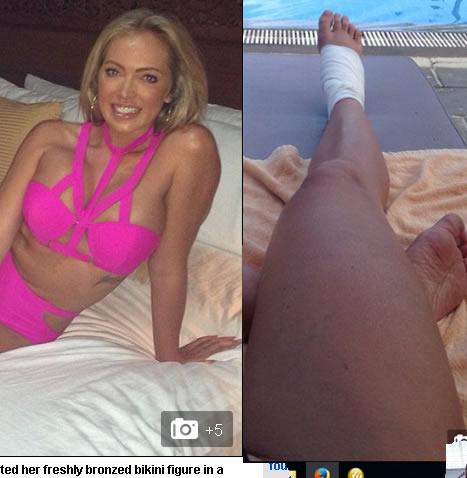 Aisleyne Horgan se fractura pie