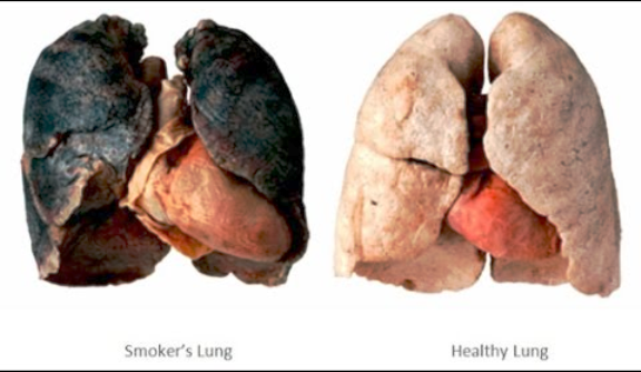 The Health Effects of Cigarette Smoking