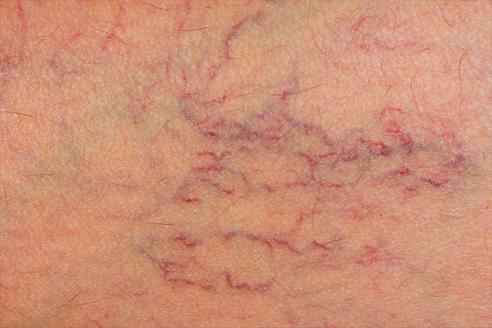 capillari pene