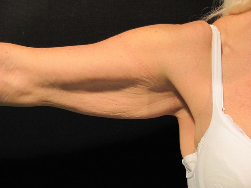 eliminare il grasso dalle braccia