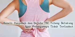 Obat Tradisional TBC Tulang Belakang