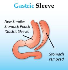 http://www.diabesity.in/laparoscopic-sleeve-gastrectomy