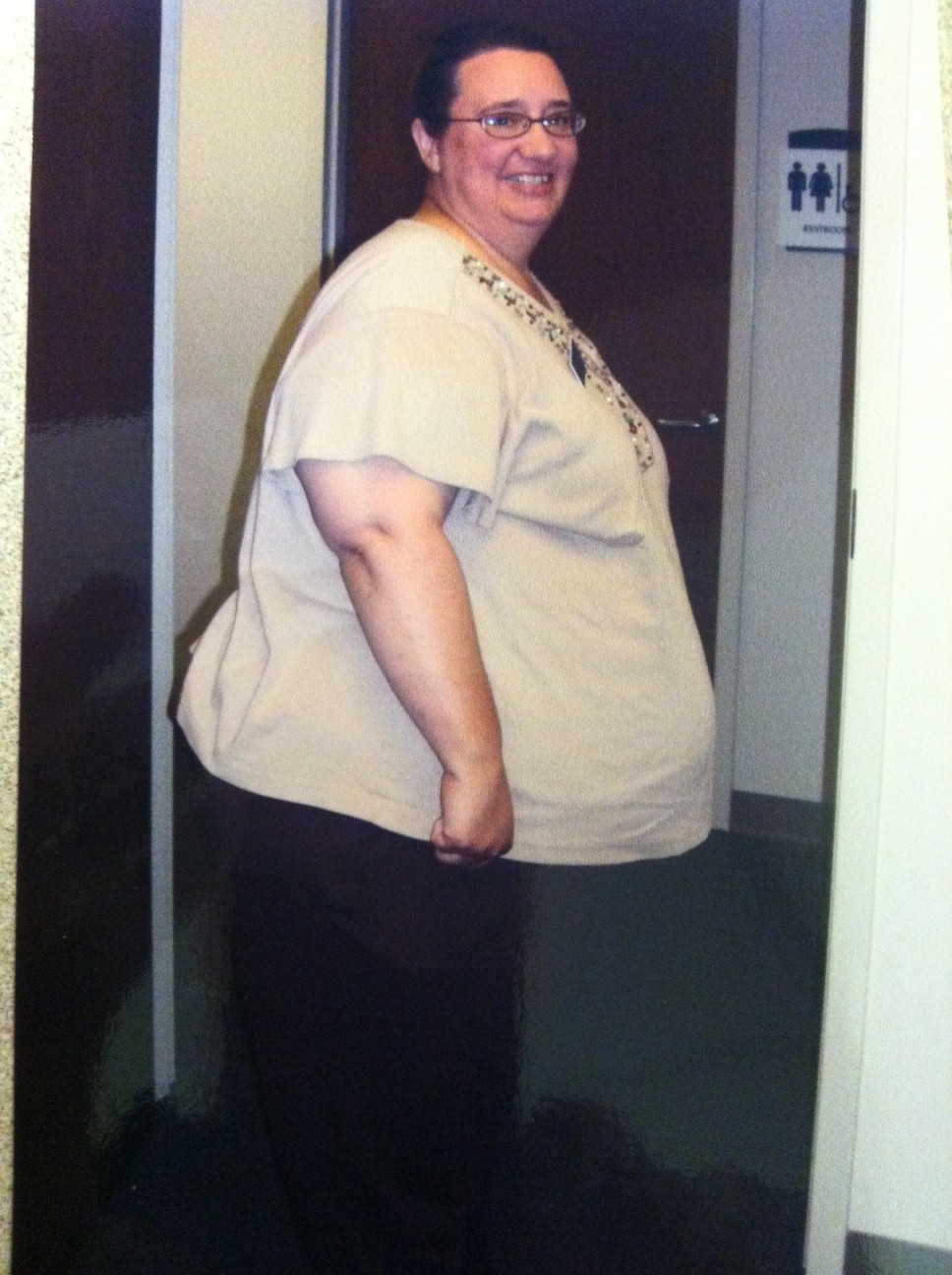 Bariatric Surgery Blog Testimonial After Gastric Bypass Christina