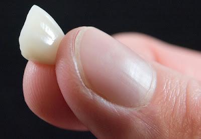 bọc răng sứ có tháo ra được không -9