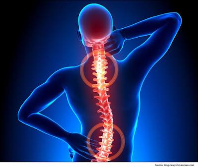 Em Didactic Spinal Epidural Abscess
