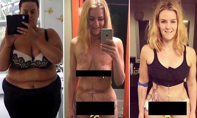 LUAR BIASA!! Gadis 168 Kg Ini Berhasil Membuang Separuh Berat Tubuhnya, Usaha Dietnya Menjadi Inspirasi Banyak Orang