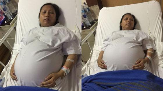 Gubernur Respon Wanita Hamil Kembar 4 Yang Ngidam Perutnya Dielus Ganjar Pranowo