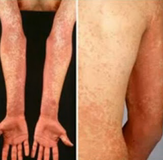 The patient's arms and back are covered with scarlatina rashes scarlatina rash pictures