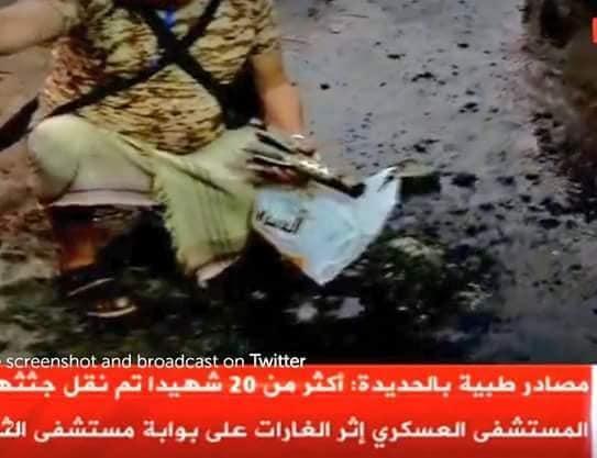 عاجل : بالصور المليشيات الحوثية هي من قصفت المدنيين امام مستشفى الثورة في الحديده بقذائف هاون .