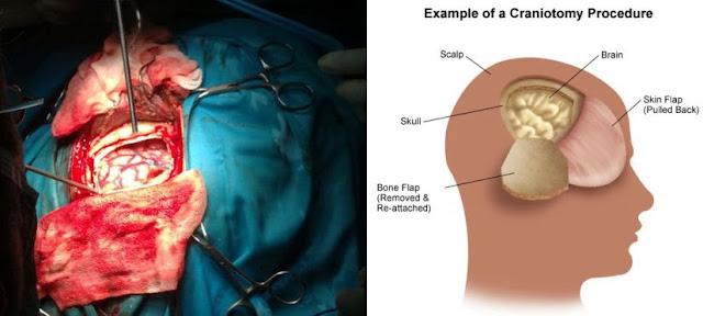 Image result for kesan kanser otak