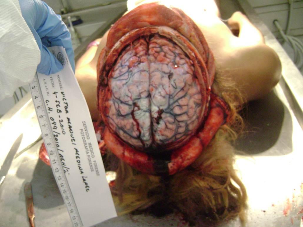 Mi cabeza en sus manos - 2 7