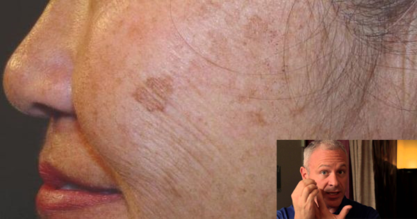 A Doctor Reveals A Simple And Natural Remedy To Eliminate Brown Spots On Your Skin