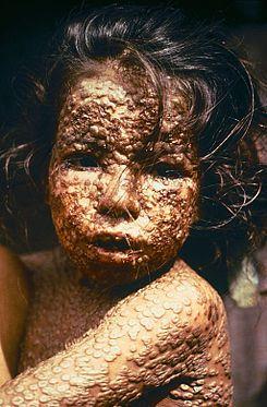 Una niña en Bangladesh enferma de viruela (1972)