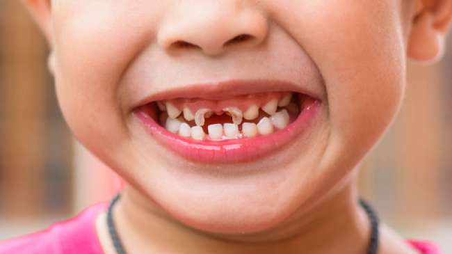 Cara Memutihkan Gigi Yang Hitam Cara Memutihkan Gigi