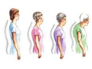 اعراض هشاشة العظام عند المراهقين