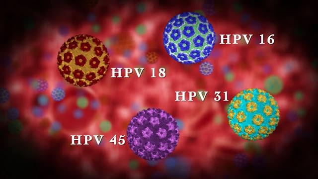 Human Papillomavirus Penyebab Utama Kanker Serviks