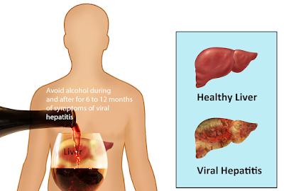 hepatitis ABCDE, hepatitis decease, hepatitis treatment, what hepatitis