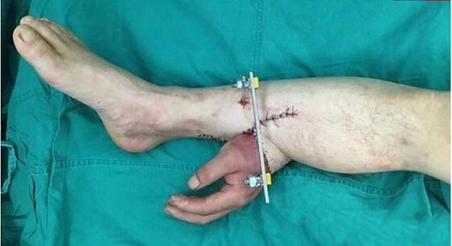 Dokter Berhasil Transplantasi, Tangan Pria Ini...