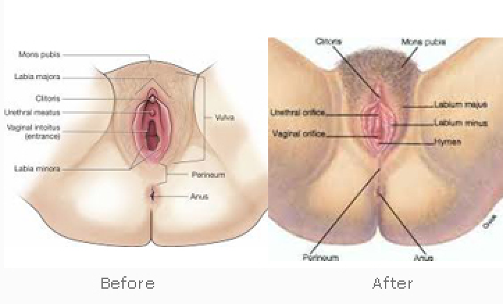 Vaginal rejuvenation boca raton