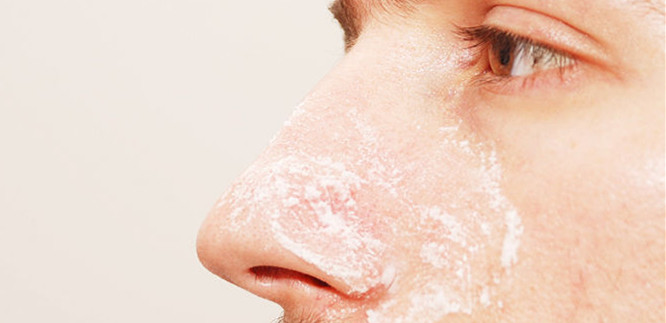 Natural Ways To Remove Blackheads on Face and Nose