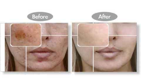 Revitol Skin Brightener Revitol Skin Brightener