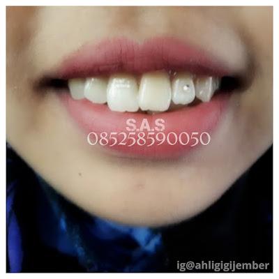 Foto fashion gigi dengan permata gigi diamont teeth