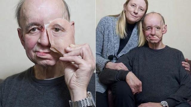 Idap Penyakit Langka, Keajaiban Benar-benar Menimpa Kakek 62 Tahun Ini