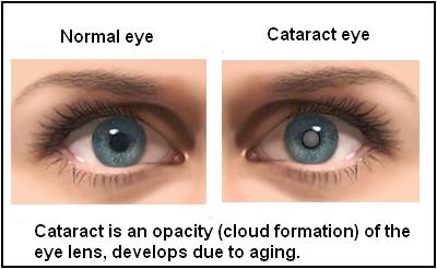 Cataracts are cloudy areas in the eye's lens (lens helps to focus light or an image on the retina)