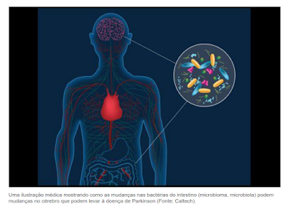 Mal de Parkinson pode começar no intestino, não no cérebro