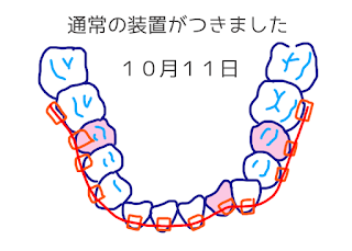 ©さんがつの歯科矯正を始めます イラスト