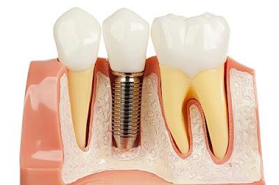 Công nghệ làm răng implant