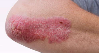 A lupus rash on the patient's extremities photos