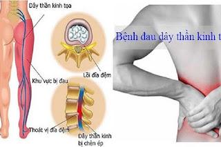 Những cách điều trị đau thần kinh tọa hiện nay