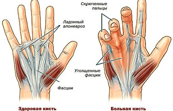 Что такое болезнь Нотта: в вопросе разбираются лучшие хирурги Харькова? Профилактика и прогноз по поводу болезни Нотта от опытных хирургов из Харькова