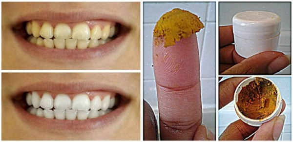 This Easy DIY Toothpaste Will Change Your Teeth Forever!