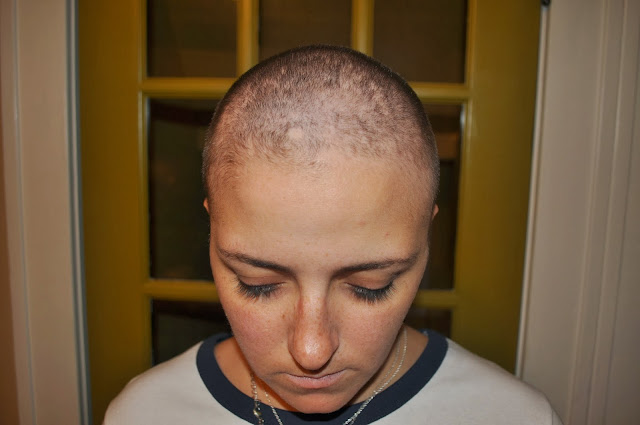 hair loss because of chemo, breast cancer, chemotherapy, pain